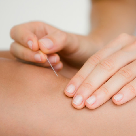 Acupuncture at Killarney Medical Centre